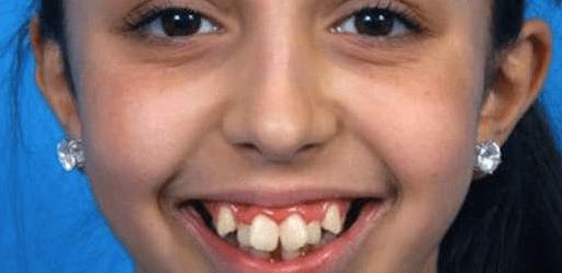 Ellie sufría bullying por su mandíbula.