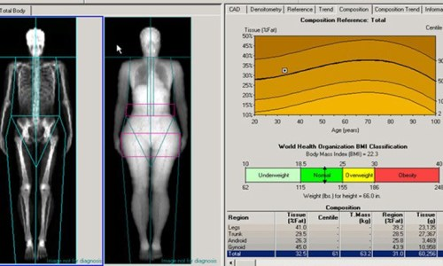 The latest technologies: DEXA and INDIBA
