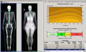 Dexa treatment Healthouse Las Dunas via SIS Spa in Spain