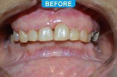 Cosmetic Dentistry - 1-1