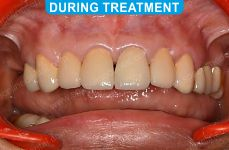 Cosmetic Dentistry - 1-3