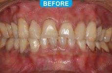 Cosmetic Dentistry - 3-2