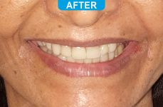 Cosmetic Dentistry - 3-3
