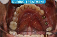 Implants - 2-2