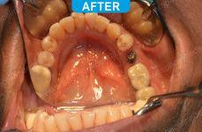 Implants - 2-4