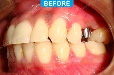 Implants - 4-1