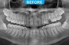 Implants - 4-2