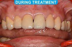 Laser Dentistry 2-2