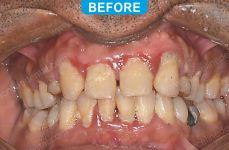 Laser Dentistry 4-1