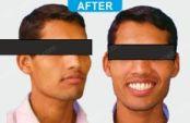 Orthodontics -1-7