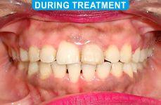 Orthodontics -4-3