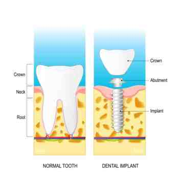 diagram comparing an implant to a real tooth