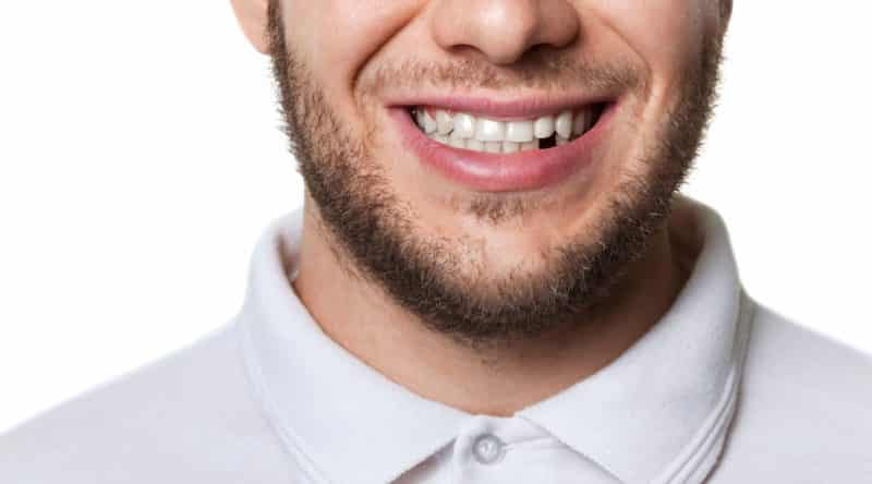 dental implant benefits bearded young man who has a missing lower front tooth.