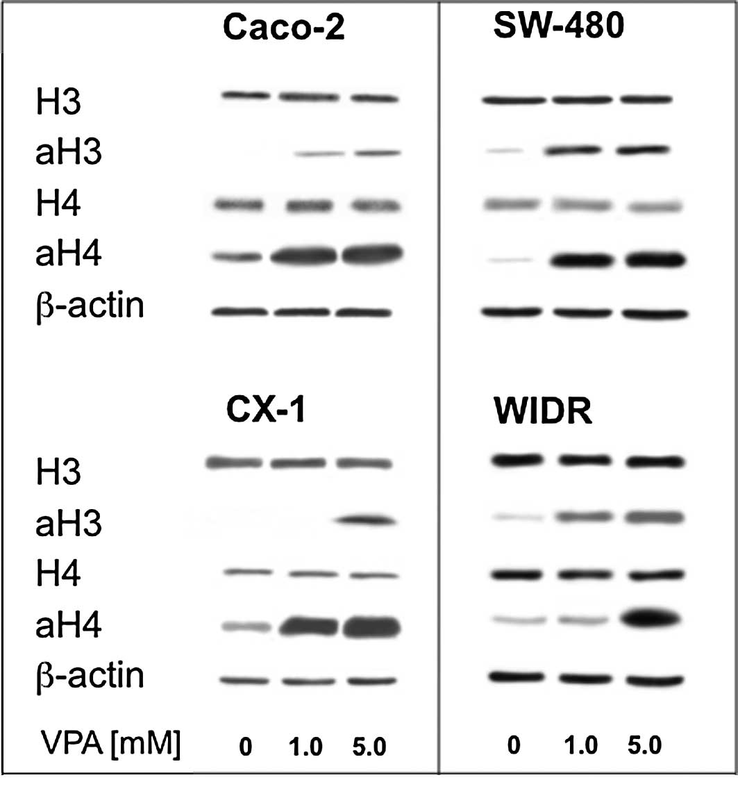 Valproate Inhibits Colon Cancer Growth Through Cell Cycle Modification In Vivo And In Vitro