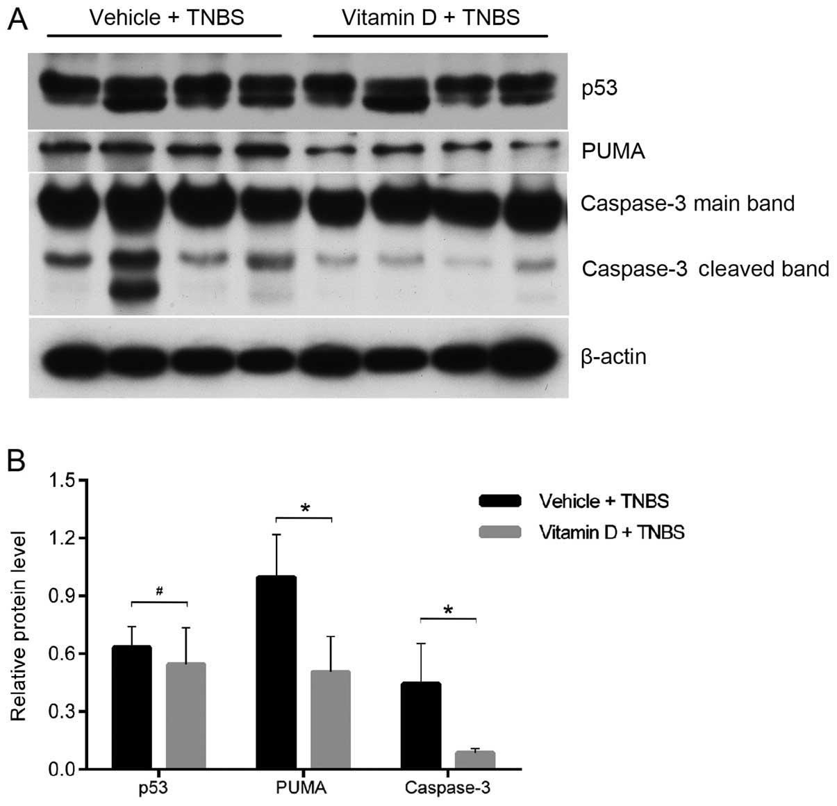 Vitamin D Vdr Signaling Pathway Ameliorates 2 4 6 Trinitrobenzene Sulfonic Acid Induced Colitis
