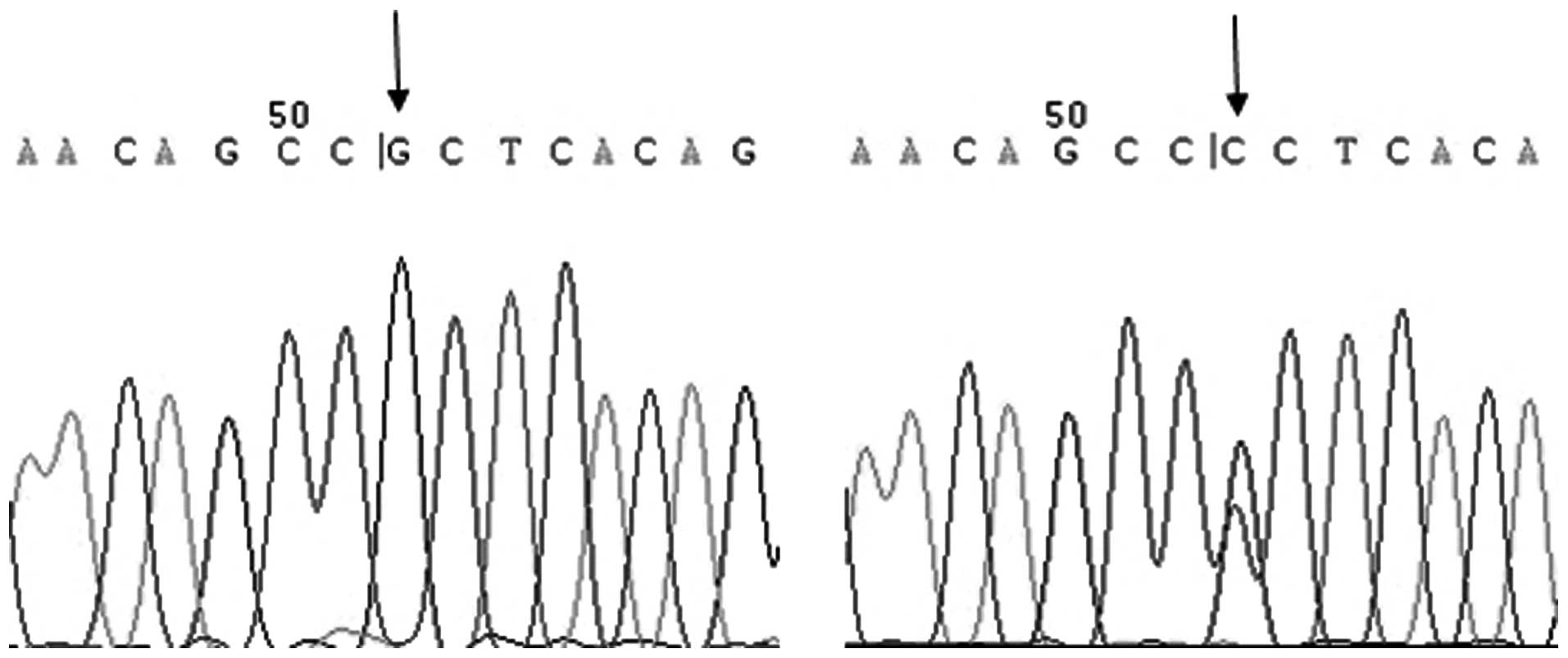 Single Nucleotide Polymorphisms In Interleukin 6 And Their