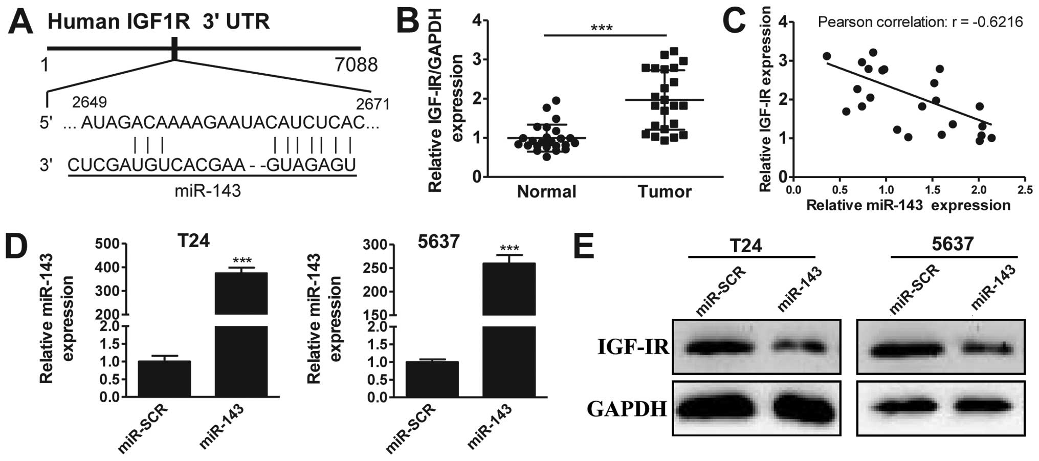 Mir 143 Inhibits Bladder Cancer Cell Proliferation And