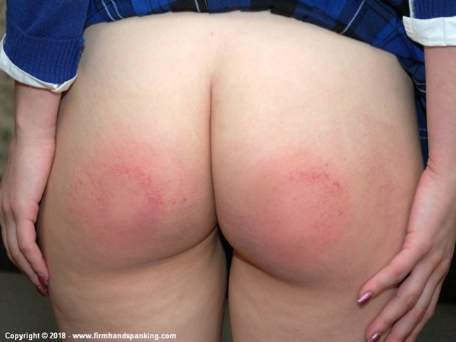 Rosie Munroe's bottom is quite red after her leather paddle spanking punishment