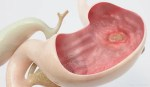 Ulcer (Helicobacter pylori)- Causes, Signs, Symptoms and Prevention
