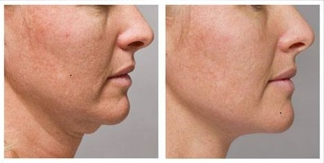 Before and after RF (2) Anti-Aging