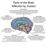 brain_autism
