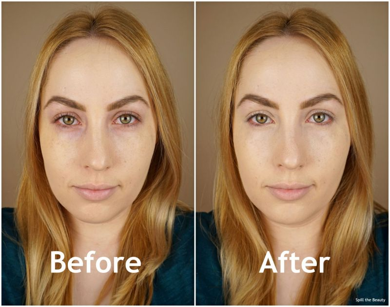 make up for ever self setting concealer 20 before and after
