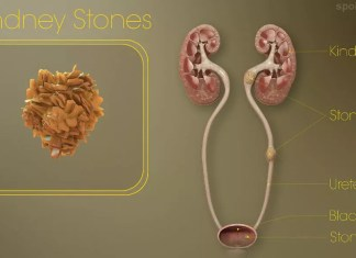 Some food to reduce kidney stone