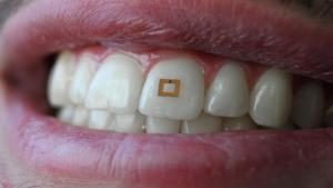 A small tooth-mounted sensor can track what you eat