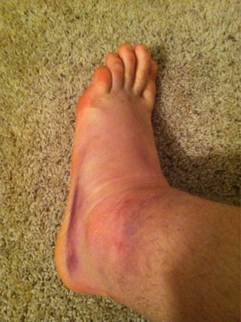 Yamma Hamma Clay Matthews Foot And Ankle Dont Look