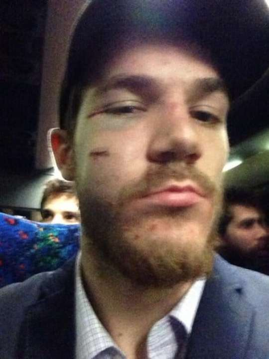 andrew-shaw-face-2