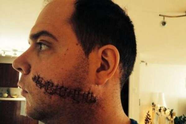 Sebastien-Courcelles-stitches