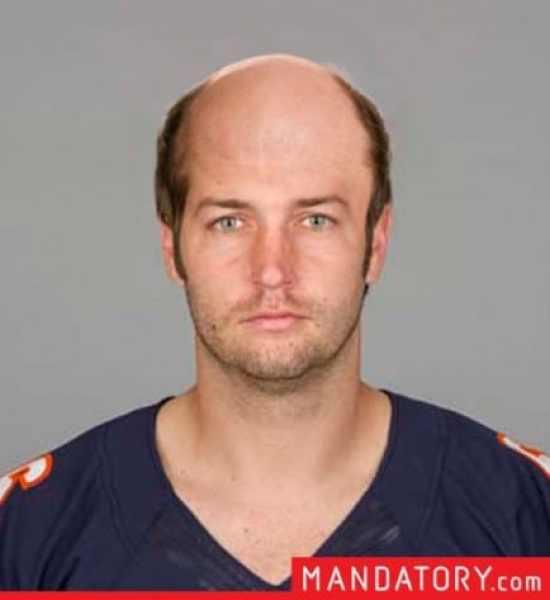 jay-cutler-bald