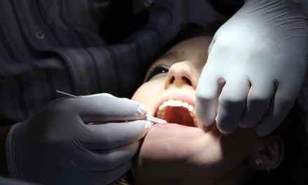 Abscesos dentales y la salud bucal