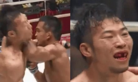 Fighter Knocks Out Front Teeth of Opponent With Brutal Elbow