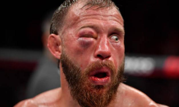 Donald Cerrone Takes a Loss After Blowing a Broken Nose Caused His Eye to Swell Shut