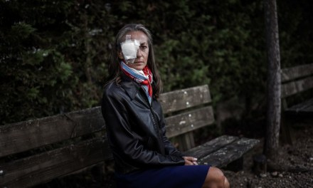 Woman Struck in eye at Ryder Cup Says Fans 'Were Taking pictures' Instead of Helping
