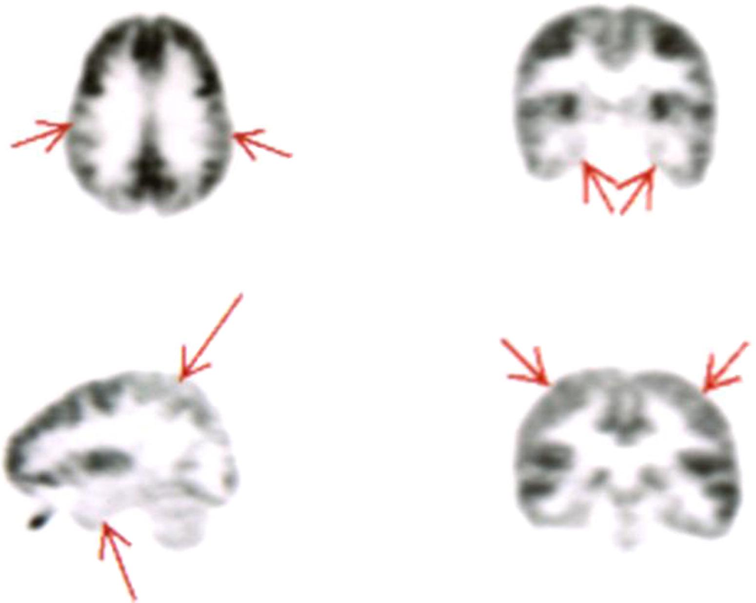 Brain Injury In Boxing