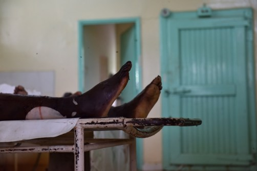 The body of one of the campus attack terrorists is seen at a mortuary in Garissa county hospital, Garissa, Kenya, April 4, 2015. Kenya's Interior Minister Joseph Nkaissery said on Friday the death toll of the attack at the Garissa University College includes 142 students, three policemen and three soldiers from Kenya Defense Forces. The four terrorists from 'al-Shabaab' were all killed during the rescue operation, the official confirmed. (Xinhua/Sun Ruibo)(dh)