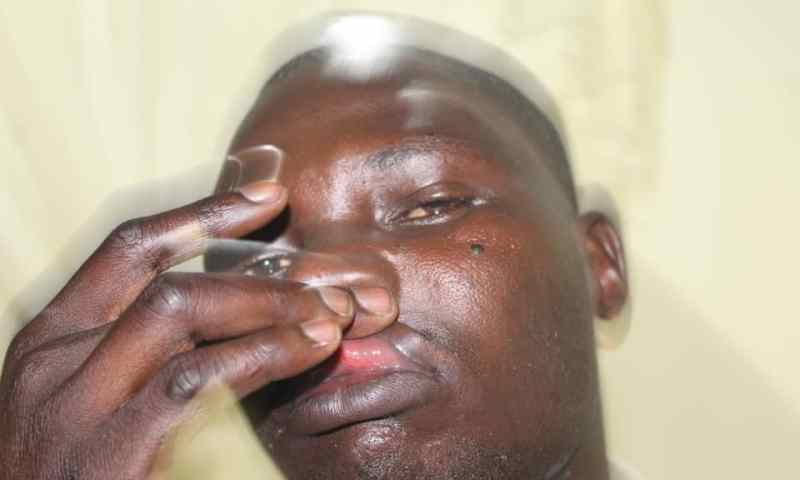 Clueless Adjumani Police Batter NTV Journalist Like Chicken Thief, Refuses To Record His Statement