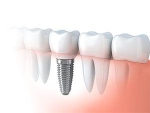 Dental Implant in Vizag