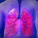 Tumore del polmone, passi avanti verso la terapia personalizzata