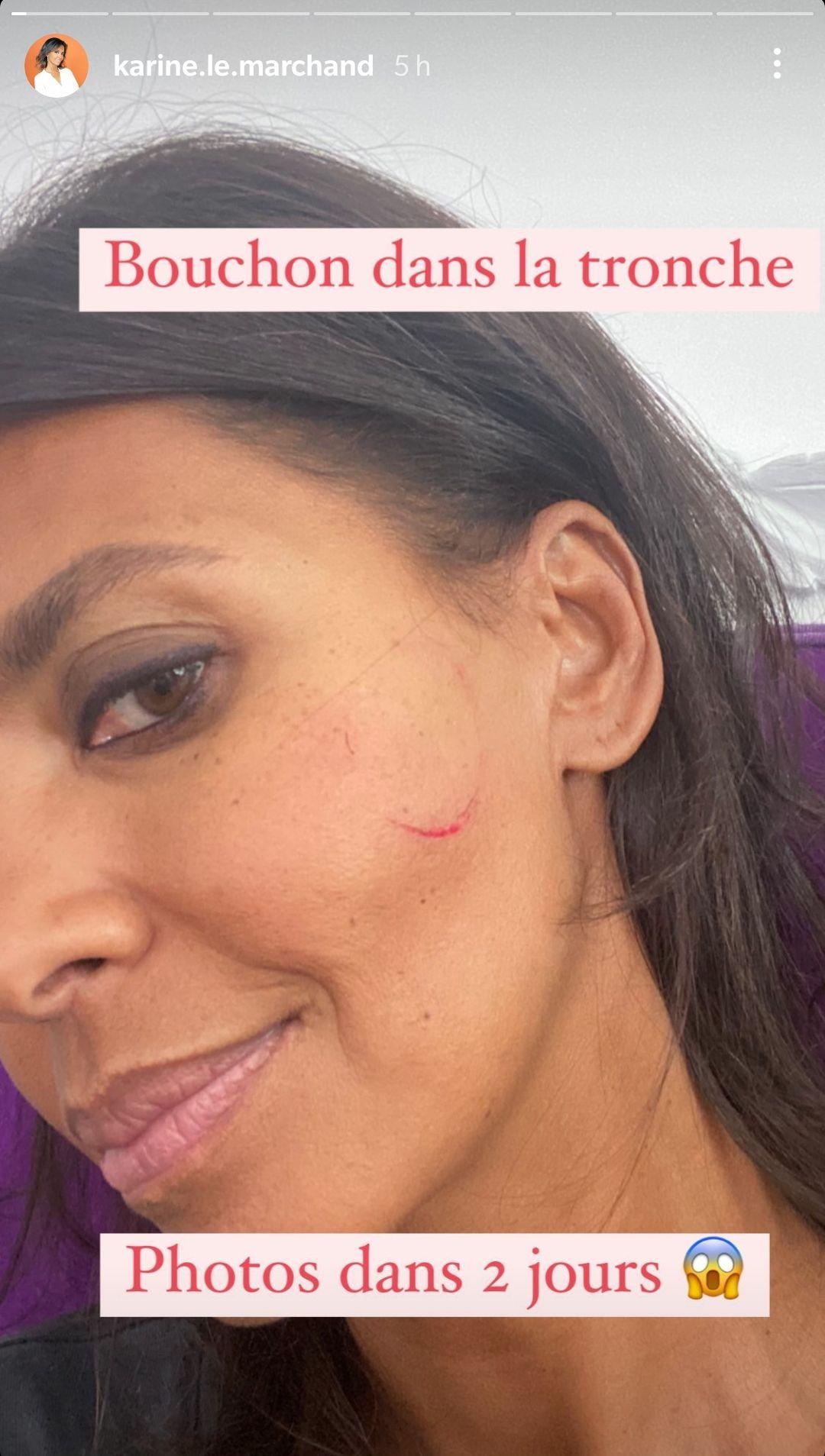 Karine Le Marchand victime d'un accident cocasse, elle dévoile sa blessure