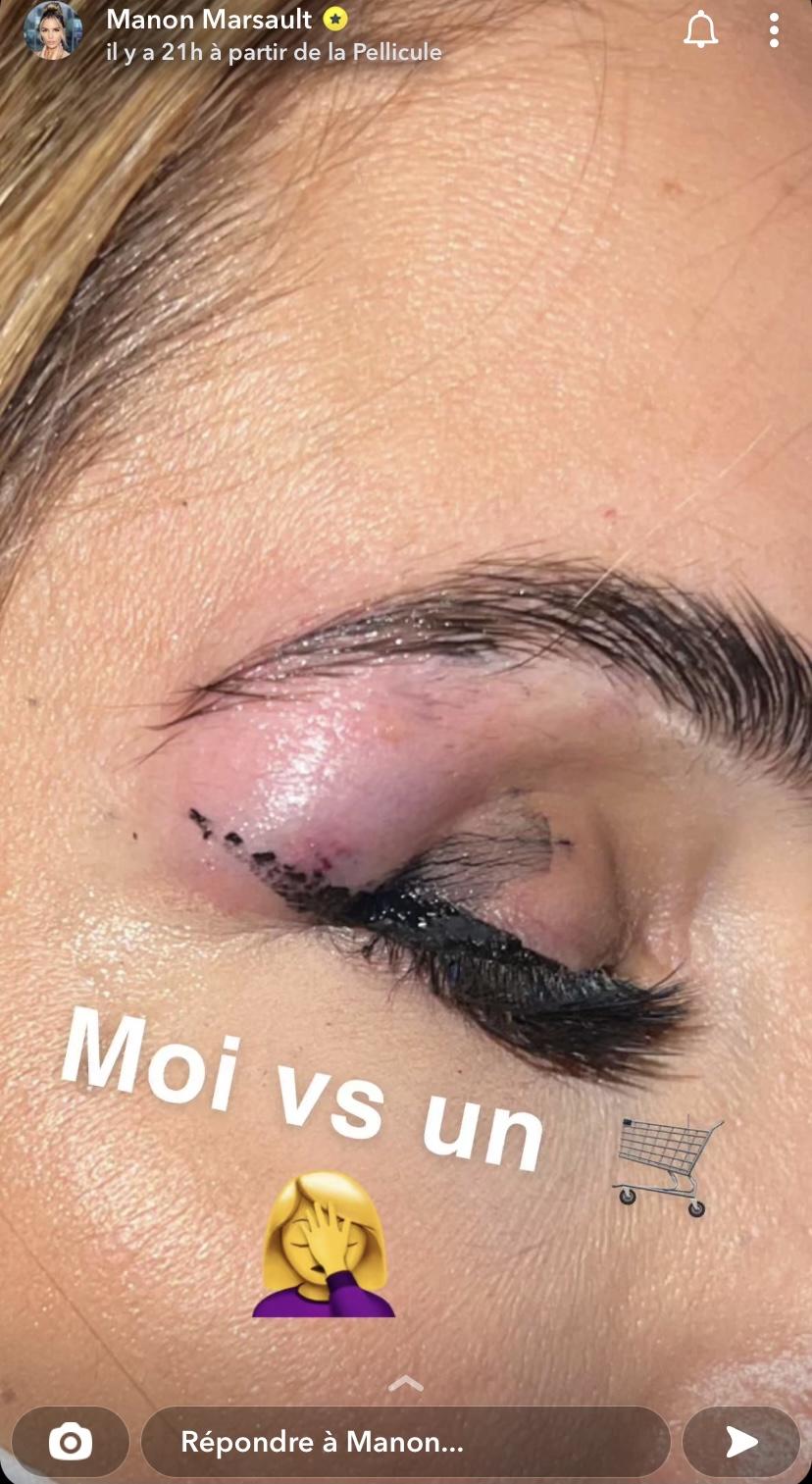 Manon Marsault blessée au visage, elle dévoile des photos choquantes