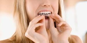 teeth whitening statistics