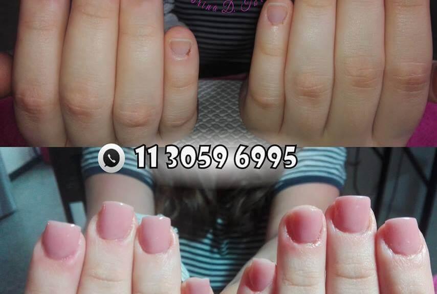 uñas comidas tratamiento unas debiles antes y despues nail art gelificadas