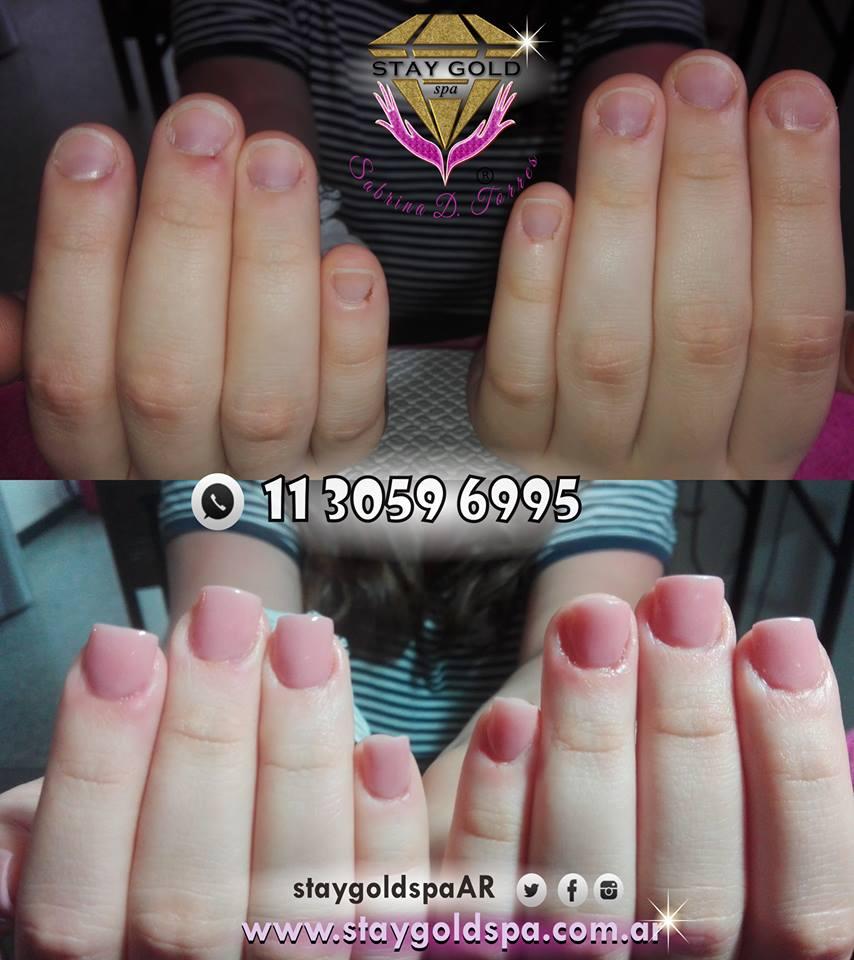 tratamiento unas mordidas debiles antes y despues nail art gelificadas