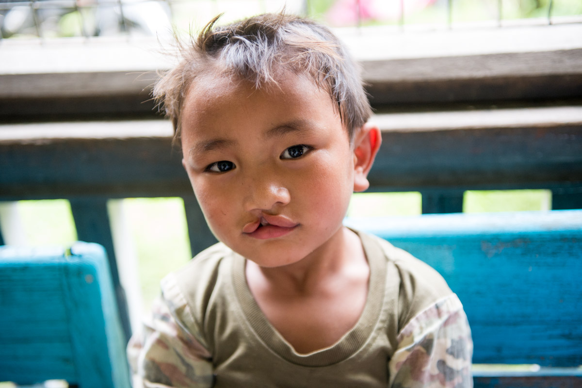 Smile Train cleft lip and palate surgery mission in Myitkyina, M