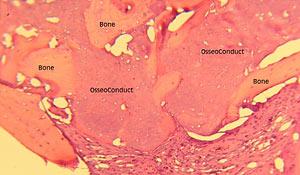 OsseoConduct™