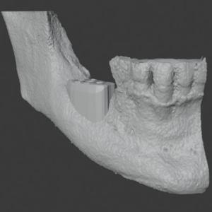3D rendering of patient's mandible needing vertical and horizontal ridge augmentation and graft design