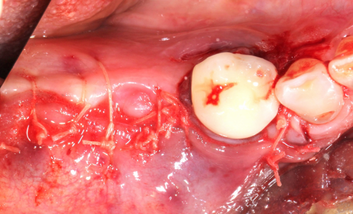 ridge augmentation surgery showing mucosa closed with 40 Vicryl suture